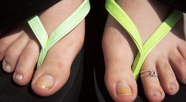 Flimsy flip-flops and sandals can cause pain and other unforeseen consequences. (Photo: Penn State)