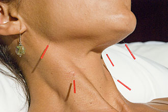 Acupuncture can be used to treat neck wrinkles and sagging skin (Photo: Natural Facelift Hawaii)