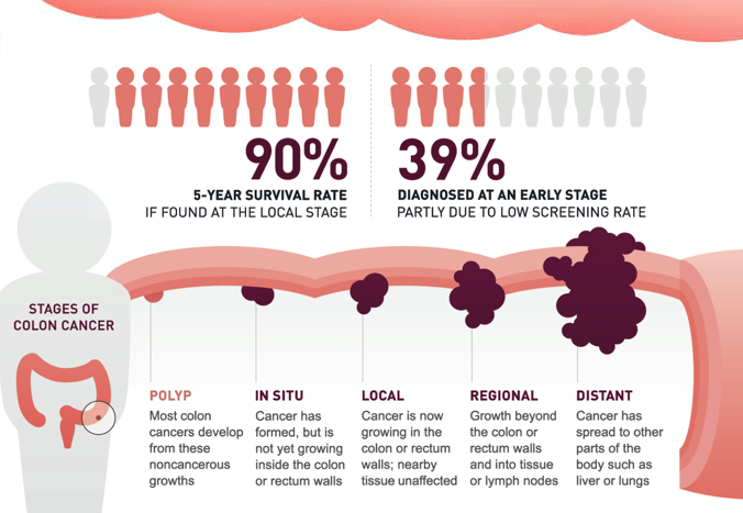 If colon cancer is found early, it can be cured. (Graphic: American Cancer Society)
