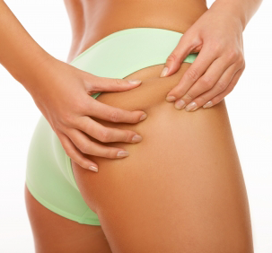 Exercise and diet are indispensable to getting rid of cellulite (Photo: Paperblog)