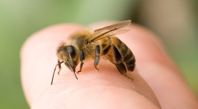 A bee sting could cause a life-threatening allergic reaction. (Photo: Bee Stick Removal Los Angeles)