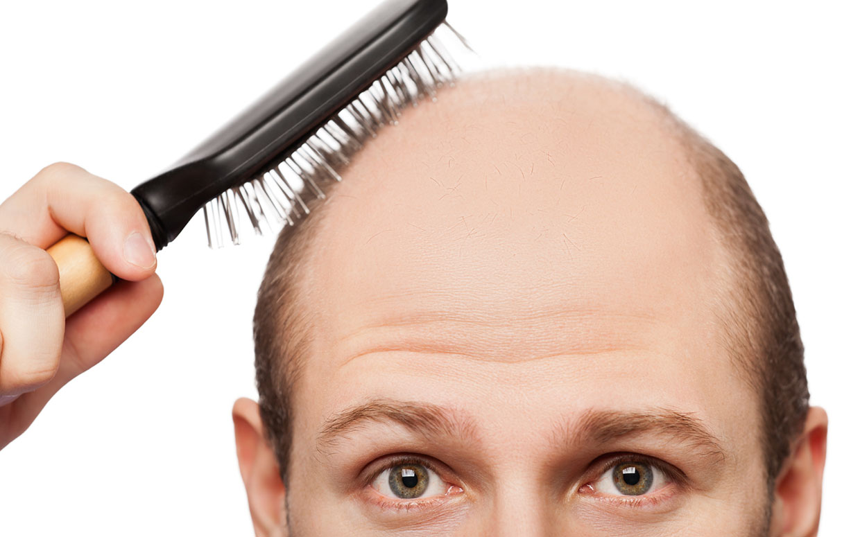 One of the biggest problems men face as they begin to age is baldness. (Photo: iStock)