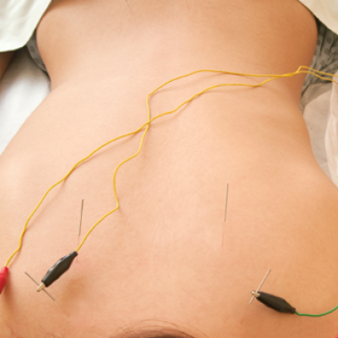 Even a placebo electroacupuncture showed a 25 percent reduction in symptoms. (Photo: merchantmiracle.com)
