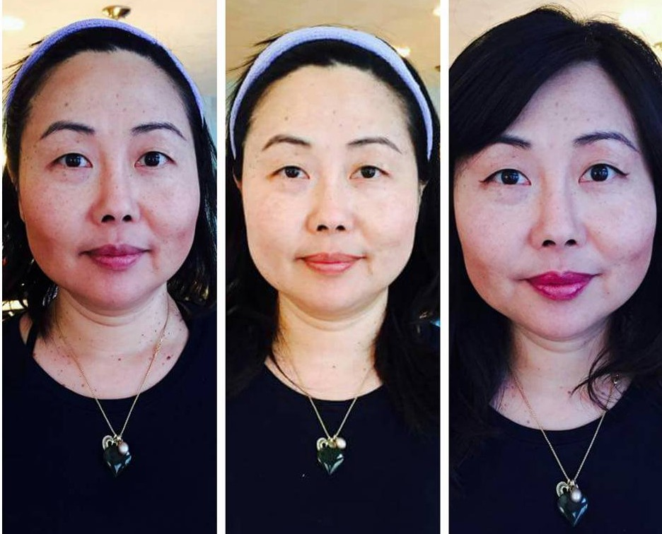 Microdermabrasion  can help reduce or eliminate wrinkles,  age spots and other skin problems. (Photo: Elizabeth Acosta)