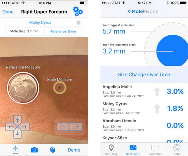 Mole Mapper users photograph their moles (left) with a reference object like a coin every month. The app than tracks any growth in the moles (right), which must be named and mapped on the users body. (Photos: Oregon Health & Science University)