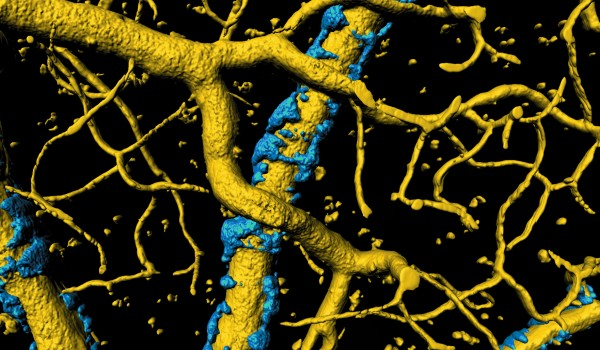 Virginia Tech scientists have uncovered a mechanism in the brain that could account for some of the neural degeneration and memory loss in people with Alzheimer's disease. A buildup of misfolded proteins causes an exoskeleton (in blue) to form around blood vessels (in gold) in the brain. (Illustration: Virginia Tech)