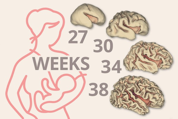 Because babies born prematurely are still developing, they typically have smaller brains than full-term infants. Shown are depictions of the cortical-surface area of the brain at different points in gestation. (Graphic: Eric Young)Because babies born prematurely are still developing, they typically have smaller brains than full-term infants. Shown are depictions of the cortical-surface area of the brain at different points in gestation. (Graphic: Eric Young)