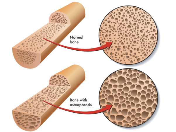 Osteoporosis is when holes develop in the bones. (Illustration: Roberto Biasini)