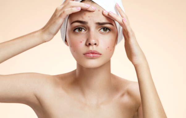 You often don't know which ingredients in your skincare and makeup products are causing acne and other blemishes. (Photo: Dreamstime)
