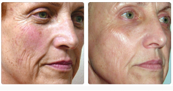 Women report having a healthy glow after IPL treatment and being able to go without makeup. (Photo: DC Derm Docs)