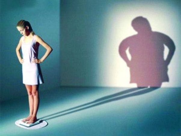 Individuals who struggle with anorexia are often experts at hiding their weight loss. (Photo: Northwestern University)