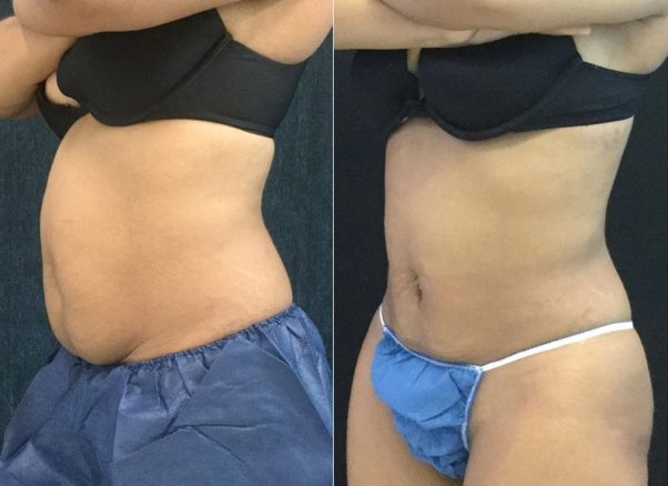 Before and after Coolsculpting. (Photo: Coolsculpting)