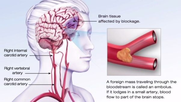 An ischemic stroke occurs when a clot or a mass clogs a blood vessel, cutting off the blood flow to brain cells. (Image: American Heart Association)