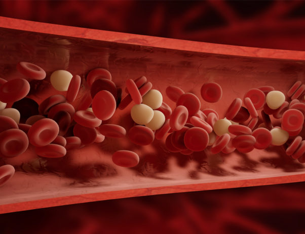 Blood clots can be treated with medicine or surgery. (Photo: Thinkstock)