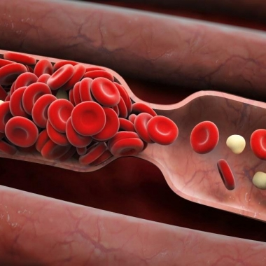 Blood clots block veins and cause swelling and pain. Sometimes they travel to the lungs and can cause death. (Photo: Shutterstock)