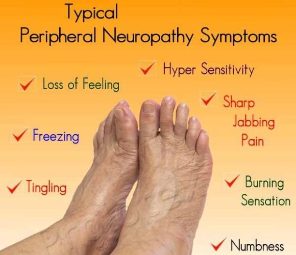 Neuropathy symptoms include loss of feeling,  freezing, tingling,  hyper sensitivity,  sharp jabbing pain,  burining sensqtion or numbess in the feet or hands. (Photo: therapysocks.com)