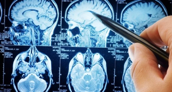 A brain scan is usually needed to diagnose a brain tumor. (Photo: Thinkstock)