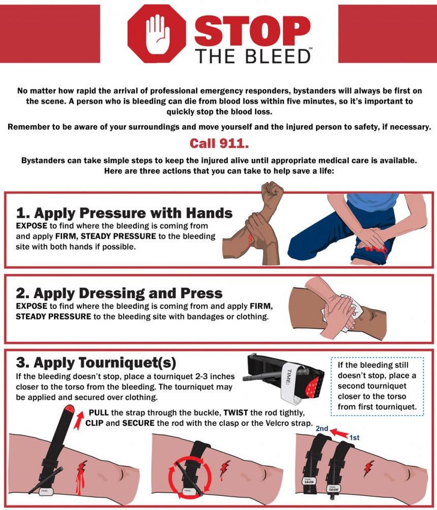 Instructions on how to stop bleeding. (Graphic: U.S. Dept. of Homeland Security)