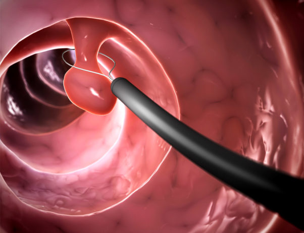 A personal or family history of colorectal polyps also increases a person's risk of developing colorectal cancer. (Image: Eraxion/Thinkstock).