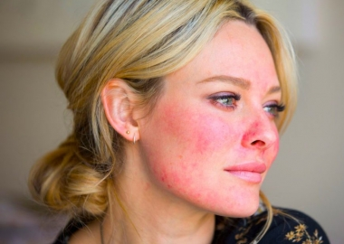 A blonde woman with rocea on her face. (Photo: Sarah Jagger)