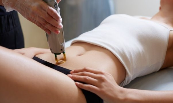 A woman lying on a table in tank top and panties gets laser hair removal in her bikini area. (Photo: BHRC)