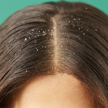 A closeup of a woman's head with dandruff. (Photo: Tops Images)