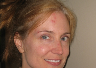 woman with shingles on the right side of her forehead and face. (Photo: Anna See)