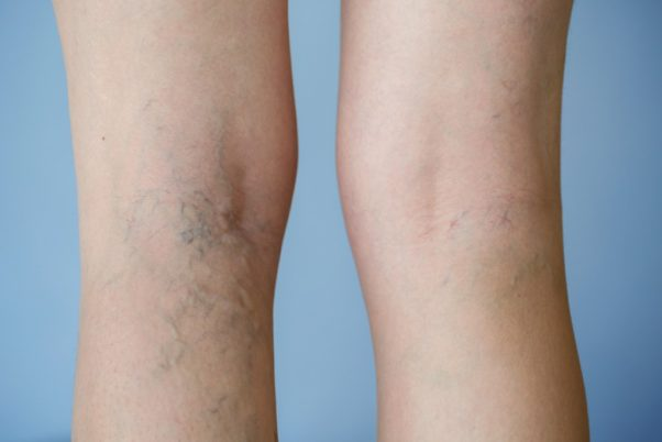 The back of someone's legs at the knees with varicose veins. (Photo: Getty Images)