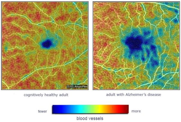 Side-by-side photos of retina scans.The one on the right with mostly greens, yellows and reds, with the one on the right has a larger area of blue in the center. (Photo: Duke Eye Center)