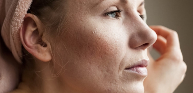 A woamn with acne on her face. (Photo: Shutterstock)
