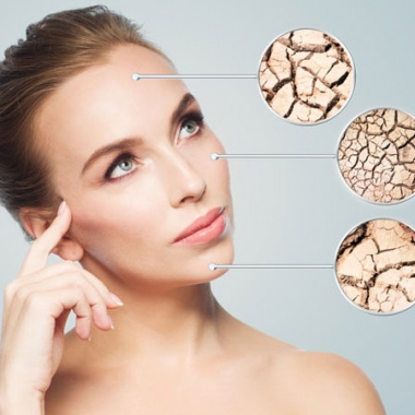Head and shoulders shot of a woman with breakouts of dry skin on her forehead, cheek and chin. (Photo: Shutterstock)
