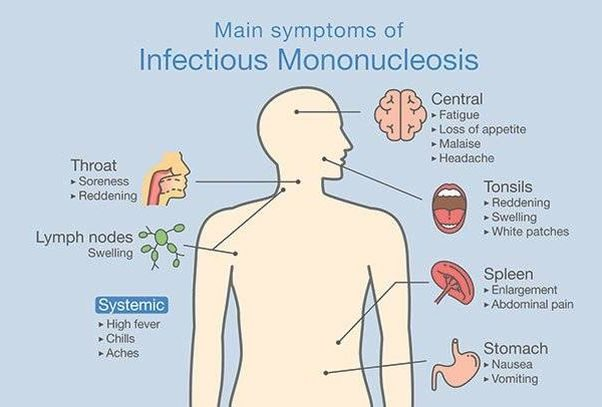 An illustration of a person showing the main symptoms of infections mononucleosis. (Image: iStock)
