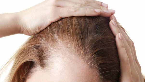 Woan's hairline showing thinning hair. (Photo: Shutterstock)