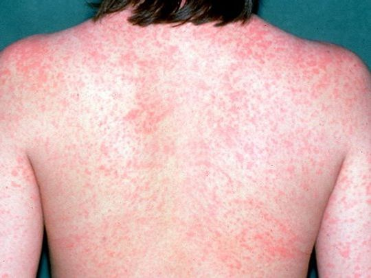 Someone's back covered in measles. (Photo: Everyday Health)