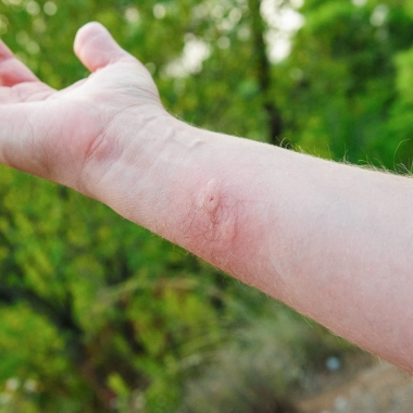 A mans arm with a bug bite on it. (Photo: Getty Images)