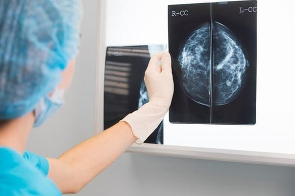 Doctor in scrubs, hat and glovees looks at a mammogram on a light box. (Photo: getty Images)