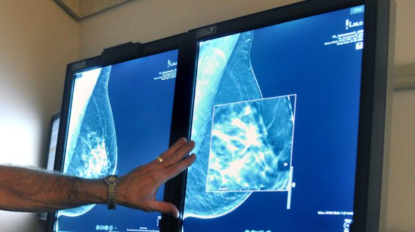 Light box with two mammograms on it and a doctor examining them. (Photo: AP)