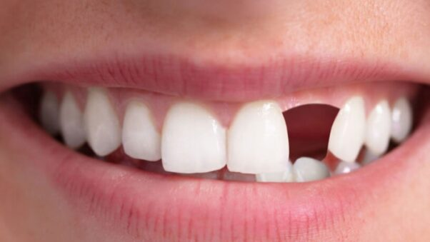 Close up of a womans mouth with a the second tooth on the right missing. (Photo: 123RF)